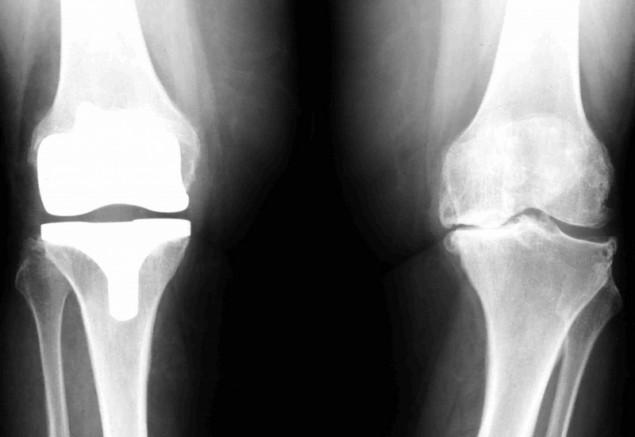 clinica-fisioterapia-tres-olivos-lesiones-rodilla