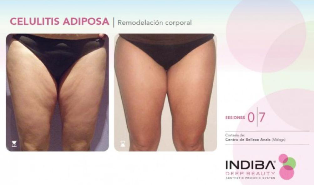 tratamiento-indiba-fisioterapeuta-madrid