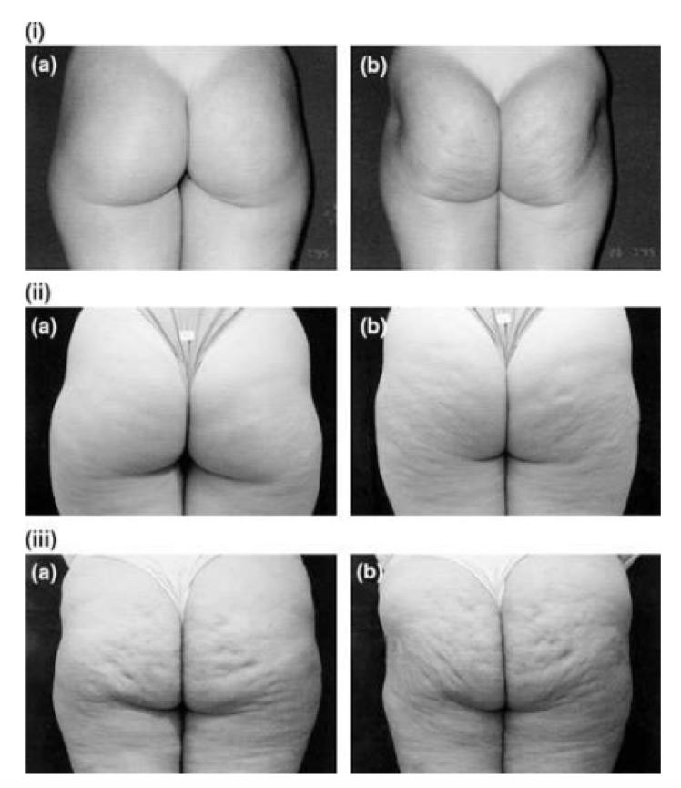 imagen-de-celulitis-blog-fisioterapia