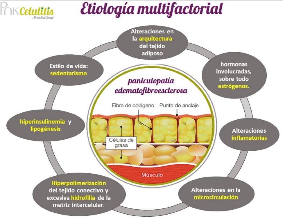 cuadro-etiologia-multifactorial-fisioterapia-tres-olivos