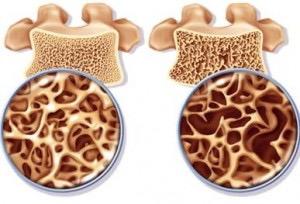 blog-fisioterapia-densidad-osea