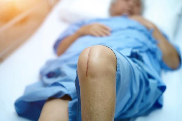 operacion-rodilla