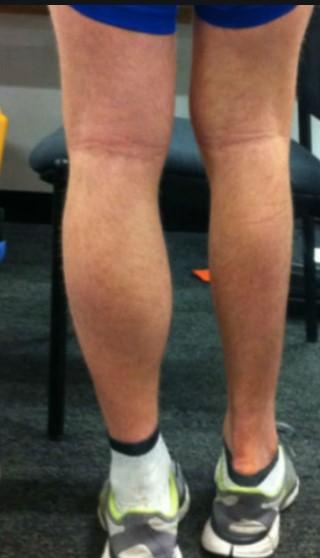 recuperacion-rodilla