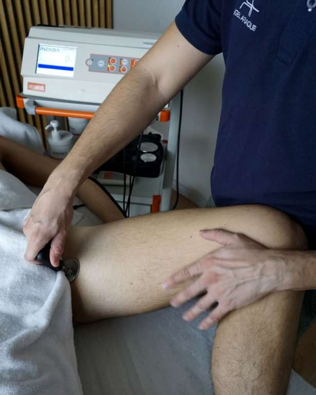 Artrosis-de-cadera-fisioterapia-angel-araque-tres-olivos